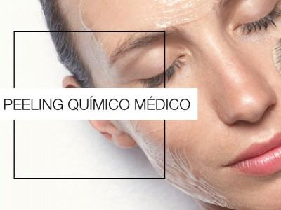Recupera la juventud de tu piel con el peeling químico médico.
